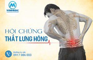 Hội chứng thắt lưng hông là gì
