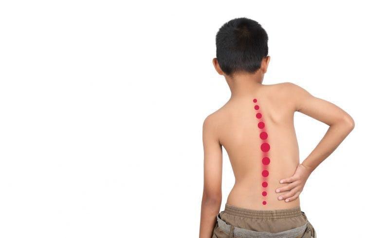 Cong vẹo cột sống ở trẻ em