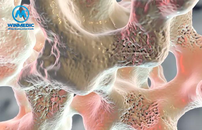 Loãng xương gây đau nhức xương khớp