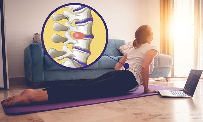 Bài tập điều trị đau thắt lưng